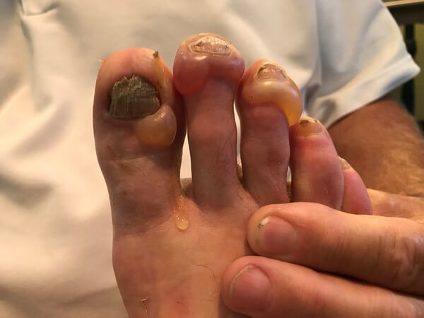 Blistered Toes