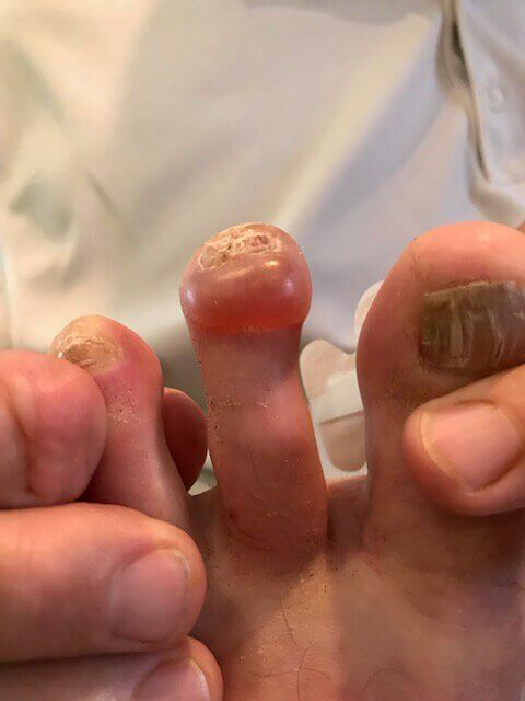 Blistered Toes - Left Foot