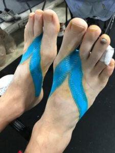 Both Feet Taped